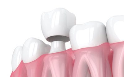 Crowns vs Bridges: Which one is right for me?